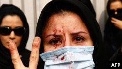 An injured Iranian opposition supporter flashes a V-sign during clashes with security forces in Tehran on December 27.
