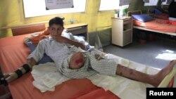 اسحاق خان په ۲۰۱۱ز کې په باجوړ کې د ځمکلاندې بم په چاودنه کې معذوره شو - د ارشیف انځور