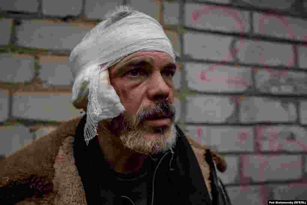 42-летний Олег был ранен при отступлении от Углегорска