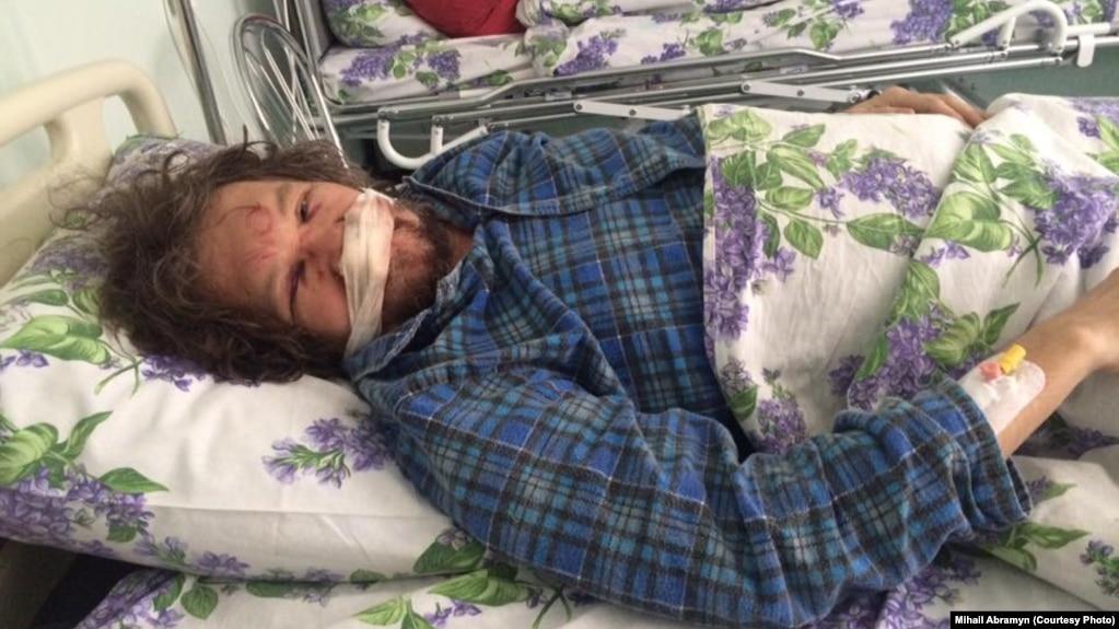 У эколога Андрея Рудомахи перелом костей черепа и сотрясение мозга