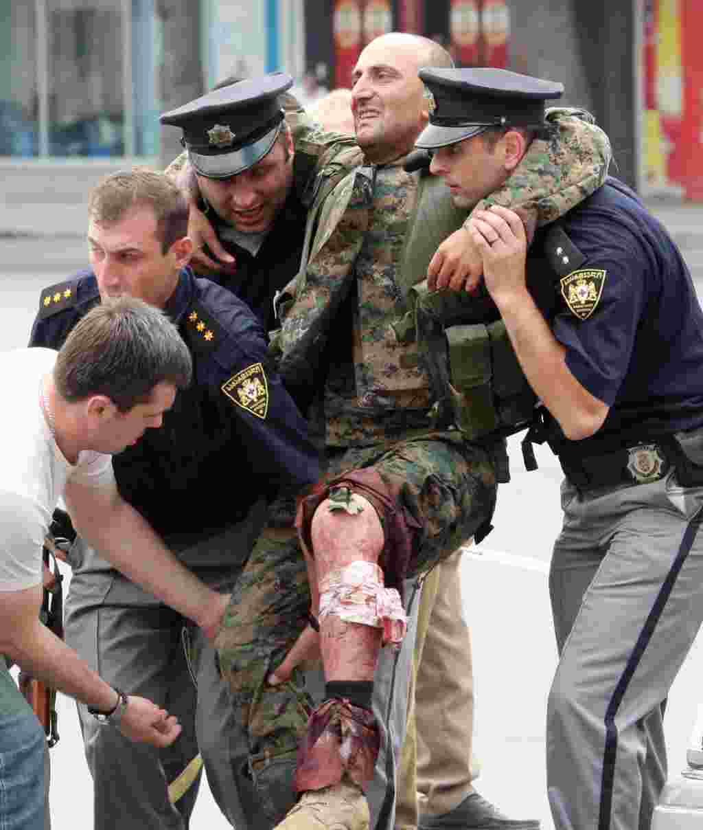 Police officers help a Georgian soldier who was wounded in fighting with South Ossetian separatists in the town of Gori.