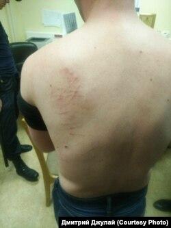 Следы на спине Ивана Голунова, оставшиеся после того, как полицейские после задержания протащили его по полу в кабинете на Петровке, 38