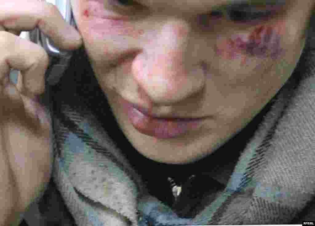 Нацбол Юрий Червинчук, избитый неизвестными у входа в пресс-центр.