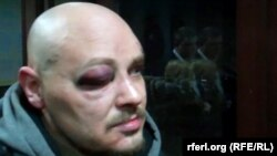 Журналист Радио Свобода Дмитрий Баркар, избитый при задержании милицией