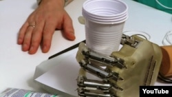 Пациент с прототипом бионического протеза удерживает пластиковые стаканчики.