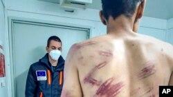 Еден мигрант кој тврди дека бил тепан и протеран назад во Босна од хрватски полицајци кога се обидел да премине во Хрватска