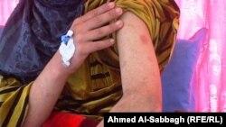 کودکی که در عراق شکنجه شده است