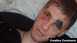 Степана Черногубова избили за публикацию в блоге