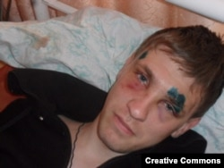 Activist Stepan Chernogubov was beaten after publishing a report about toxic waste.