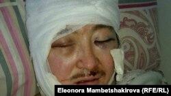 Нападение на Кадыра Маликова было совершено 26 ноября 2015 года.
