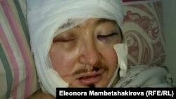 Кадыр Маликов находится в тяжелом состоянии в реанимации в Бишкеке. 26 ноября 2015 года.