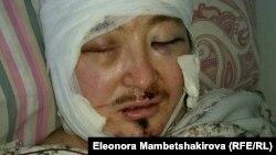 Кадыр Маликов после нападения в больнице