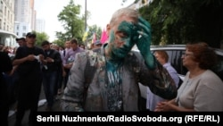 Активіст Віталій Шабунін після нападу, Київ, 17 липня 2018 року