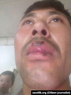 Мухиддин Абдувохидов после избиения в отделении милиции Мирзаабадского района.