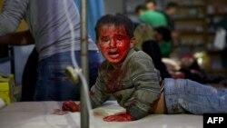 Сирийский мальчик, ранный во время воздушных ударов правительственных сил по объектам повстанцев в поселении Дума. 29 октября 2015 года.