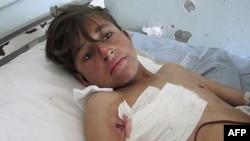 Рането дете во болница во Кунар, Авганистан