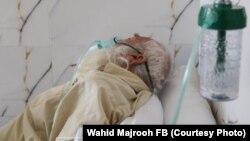 یک بیمار مبتلا به بیماری ویروس کرونا در یکی از شفاخانه درمان این بیماران در کابل.