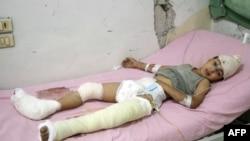 Сирия. 9-летний Хади Мустафа Хаббуш, спасенный из-под обломков домов, разрушенных в результате российских авиаударов