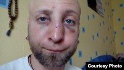 Вячаслаў Касінераў пасьля бойкі ў Маладэчне