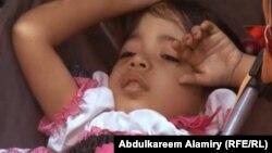طفل يعاني من مرض فقر الدم الوراثي(ثلاسيميا)