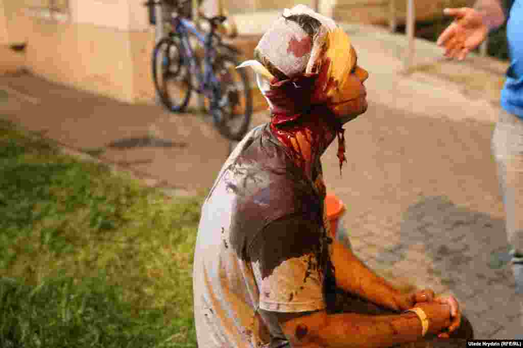 Another badly bloodied protester in Minsk on the night of August 10.