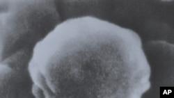 SPID-iň wirusynyň mikroskopik görnüşi. Surat 1985-nji ýylyň dekabrynda düşürilen.