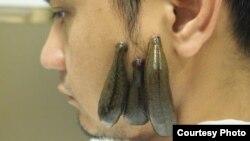 Кыргызстанда гирудотерапия менен дарылангандар арбыды.