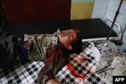 Раненый сирийский ребенок в больнице после авиаударов