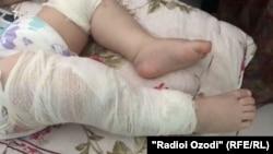 Ноги ребенка, в теле которого обнаружили металлические иглы.