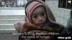 کودکی در شهر مضایا در سوریه
