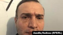Nicat İbrahim, etiraz olaraq ağzını tikib aclıq aksiyası keçirir, 2 yanvar 2017
