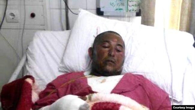 خودسوزی یونس عساکره به دلیل تشبیه شدن با خودسوزی محمد بوعزیزی در تونس جنجالی شد