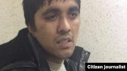 Гражданина Киргизии Хуснидина Зайнабидинова могли пытать после задержания в Магнитогорске