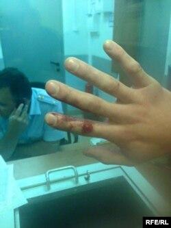 Разбитые пальцы Андрея Грязева
