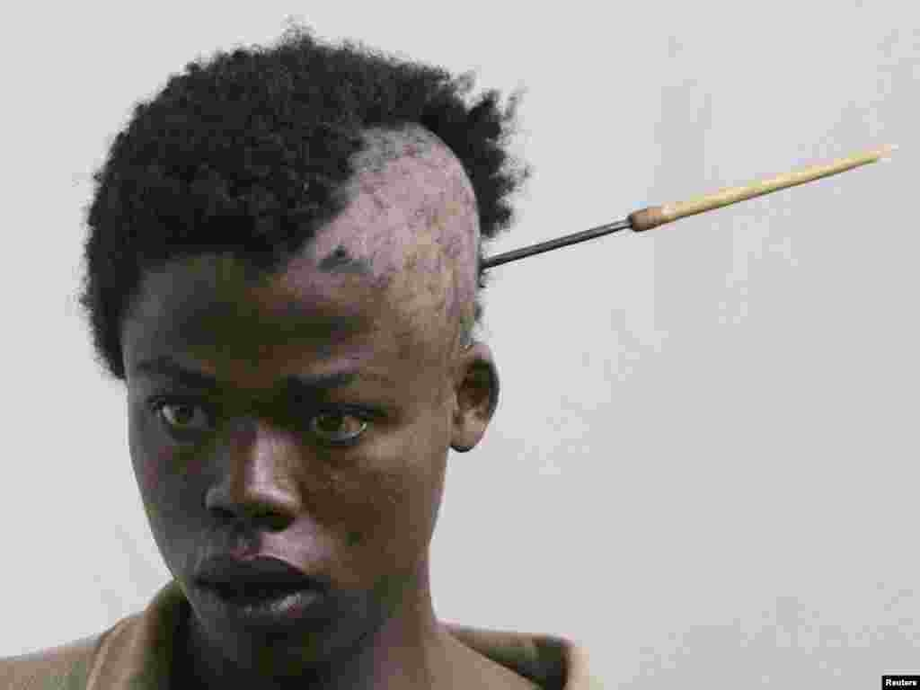 A young man with an arrow in his head arrives at hospital following ethnic clashes in the town of Nakuru in the Rift Valley area January 26, 2008. Kenyans in the Rift Valley town of Nakuru feared more violence on Saturday after a disputed election triggered pitched battles between ethnic gangs that killed at least a dozen people. REUTERS/Peter Andrews