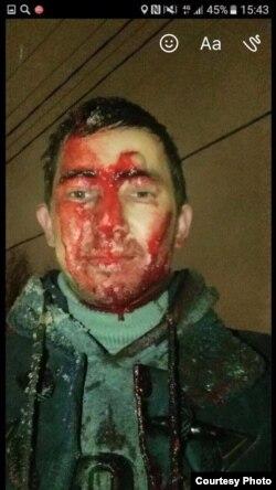 Valuev Abdulhakimning olti joyiga pichoq urgan