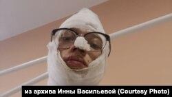 Максим Кокорин, обожженный в машине полиции подросток из Иркутска