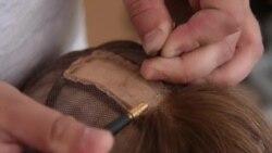 Fuadove perike za male bolesnike