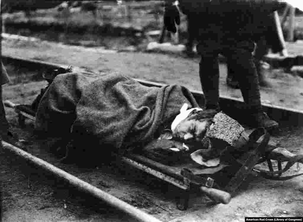 Қызыл армияның жаралы жауынгері. 1919 жылы түсірілген сурет.
