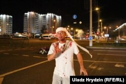 An injured protester on the streets of Minsk on August 10. Security forces used stun grenades and rubber bullets against anti-government demonstrators. Several protesters were also severely beaten.