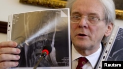 Karl Einhaeupl of the Charite Hospital displays two magnetic resonance tomography images of the spine of Yulia Tymoshenko that show a spinal disc herniation during a news conference in Berlin on April 27.