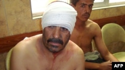 Men injured in the bombing sit bandaged in a Baghdad hospital.