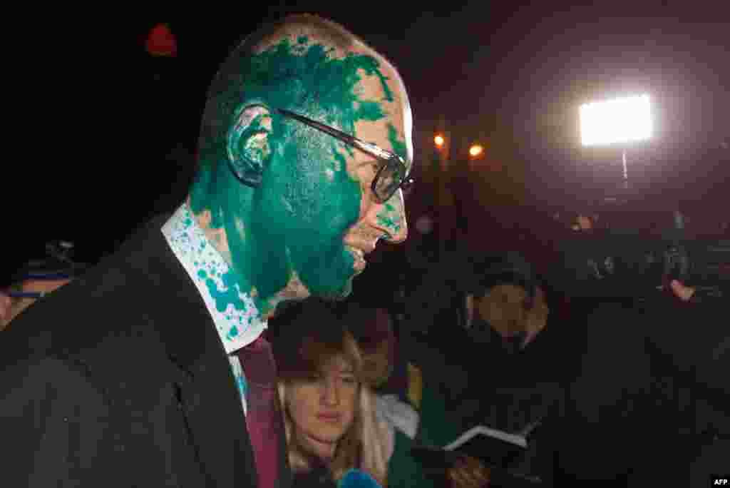 Ukrainian opposition leader Aseniy Yatsenyuk speaks to journalists after he was attacked and doused with green antiseptic by two assailants in Kharkiv on February 12. (AFP/Sergey Bobok)