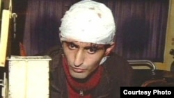 После избиения Эльхану Мирзоеву наложили на голову семь швов