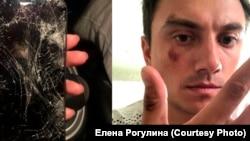 Избитый в Новосибирске фокусник Илья Рогулин