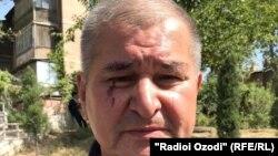 Рахматилло Зойиров после нападения неизвестных лиц, 24 сентября 2020 года