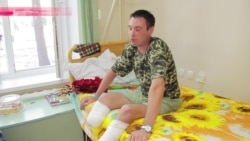 """Немецкие врачи готовят """"вторые ноги"""" для украинского бойца"""