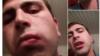 Гражданский активист Вагинак Шушанян разместил свое фото со следами травмы в Facebook, 20 декабря 2014 г.
