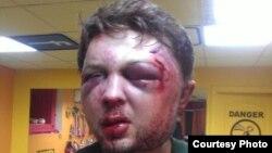 Aktivisti i Femen i rrahur në Kiev të Ukrainës, 24 korrik 2013
