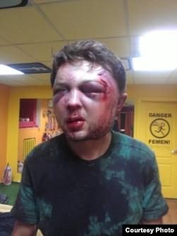 Віктор Святський одразу після побиття